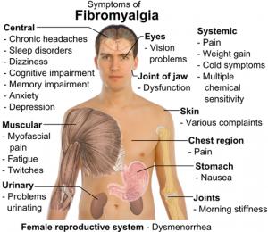 fibromyalgia_1